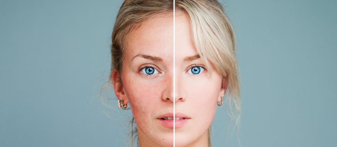 Piros foltok az arcon? Hogyan sminkeljük a rosaceas bőrt?